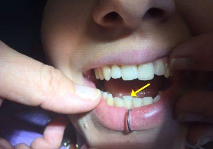 Piercing labial