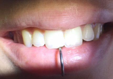 Piercing labial incisivo superior